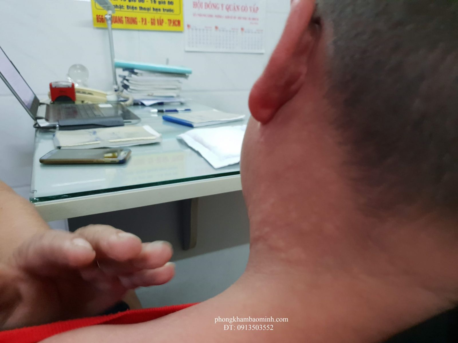 Nổi mề đay trên da đầu